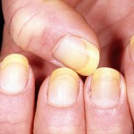 yellow nails health problems