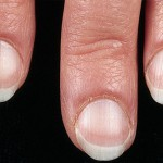 pale nails - health problems?